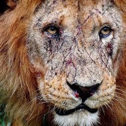 As cicatrizes têm o poder de nos lembrar que vencer é algo extremamente possível